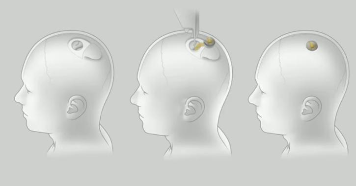 chip neuralink cervello elon musk 1
